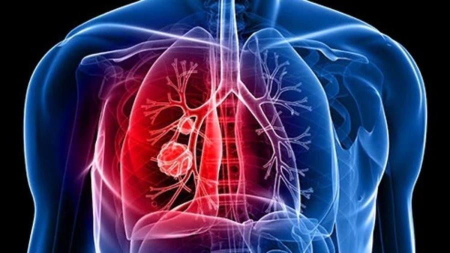 علامة منبهة في المشي قد تكشف عن الإصابة بسرطان الرئة القاتل